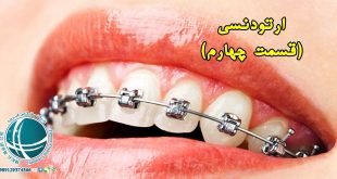 ارتودنسی, ارتودنتیست, تجهیزات ارتودنسی, سیم کشی دندان, ارتودنسی دندان, ارتودنسی چیست؟, مزیت ارتودنسی,بهترین سن برای ارتودنسی,بهترین زمان ارتودنسی,مدت زمان درمان ارتودنسی,مدت ارتودنسی,عوامل موثر بر درمان ارتودنسی,انواع ارتودنسی,ارتودنسی ثابت,ارتودنسی متحرک,وسایل ارتودنسی,وسایل ارتودنسی ثابت,وسایل ارتودنسی متحرک,واردات و ترخیص دستگاه های دندانپزشکی از چین, خرید و ترخیص دستگاه های دندانپزشکی از چین, واردات تجهیزات ارتودنسی از چین, خرید دستگاه های ارتودنسی از چین,شرکت بازرگانی فیروزه, خرید کالا از چین, واردات کالا از چین, واردات مواد اولیه, واردات مواد شیمیایی, واردات ماشین آلات صنعتی, واردات دستگاه های خطوط تولید, واردات قطعات یدکی دستگاه های صنعتی, واردات و ترخیص قطعات یدکی کالاهای الکترونیکی, واردات و ترخیص لوازم برقی خانگی, واردات قطعات یدکی لوازم برقی, حمل کالا از چین, کارگو, حمل هوایی, حمل دریایی, ترخیص کالا از گمرک,